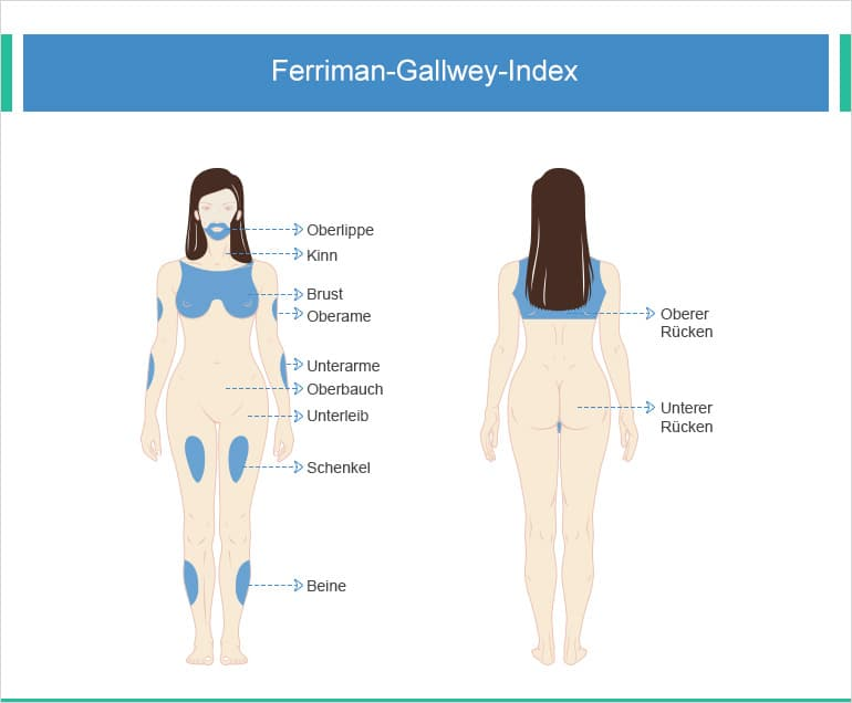 Ferriman-Gallway-Index
